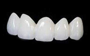 https://arcus-dental.com/%e8%a8%ba%e7%99%82%e6%a1%88%e5%86%85/whitening.html/